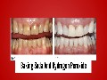 /e65a7fded6-3-proven-teeth-stain-home-remedies