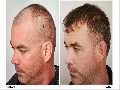 /a59392e633-the-forhair-clinic-fue-hair-transplant