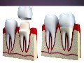 /c99cfa1533-best-root-canal-at-florida-dental-care-of-miller
